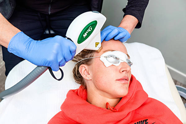 Photo Facial IPL procedure at Anderson Aesthetics