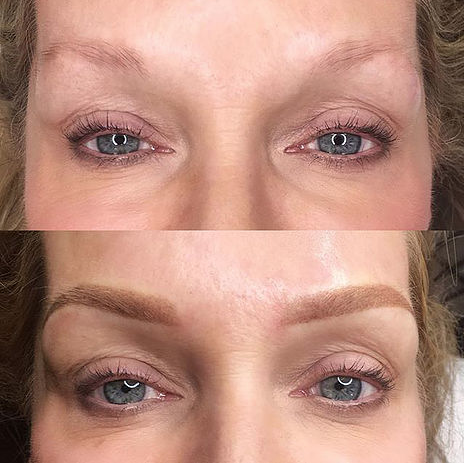 Permanent Makeup Eyebrows at Anderson Aesthetics