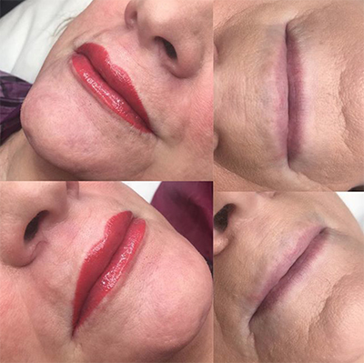 Permanent Makeup Lips at Anderson Aesthetics